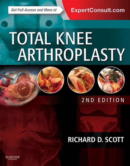 Total Knee Arthroplasty E-Book
