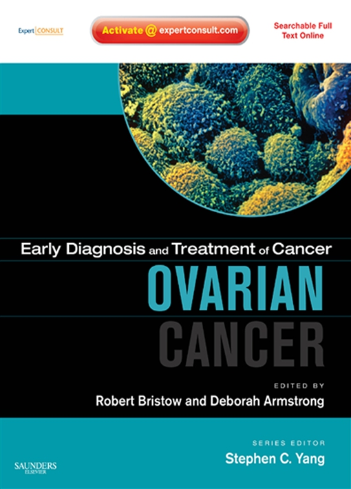 Early Diagnosis and Treatment of Cancer Series: Ovarian Cancer