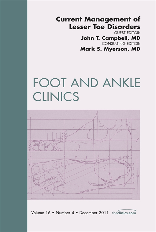 Current Management of Lesser Toe Deformities, An Issue of Foot and Ankle Clinics