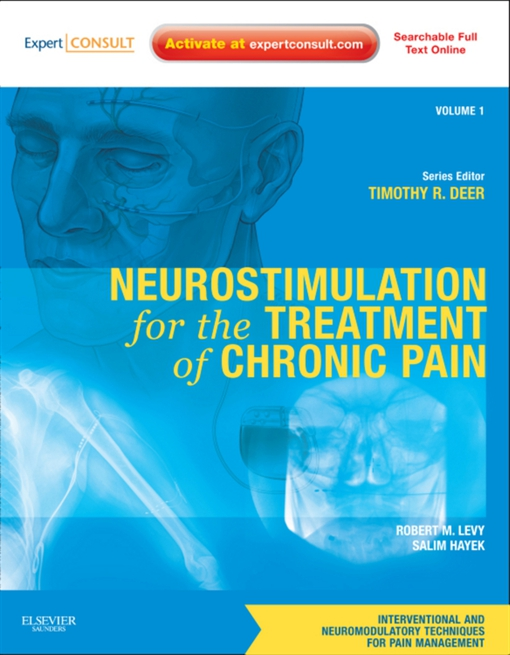 Neurostimulation for the Treatment of Chronic Pain