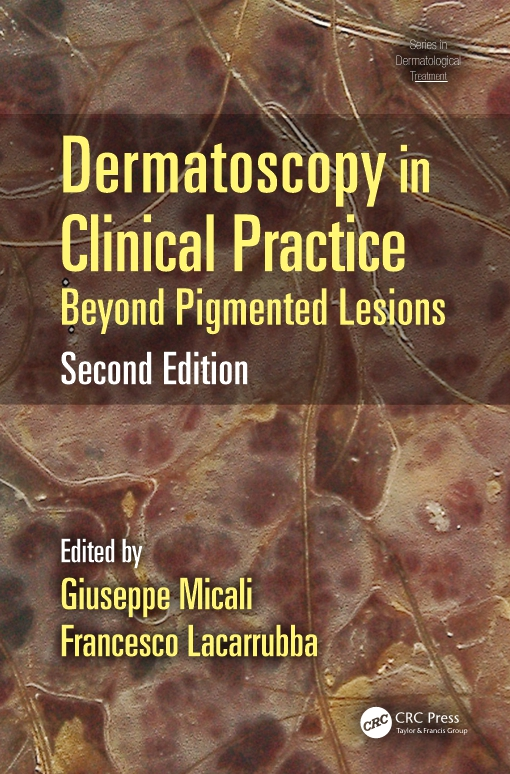 Dermatoscopy in Clinical Practice, Second Edition
