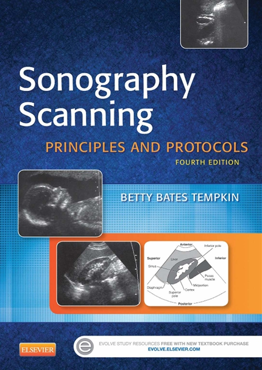 Sonography Scanning - E-Book