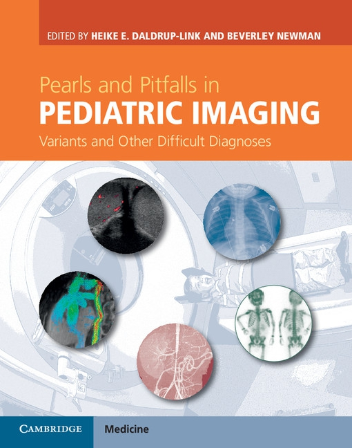 Pearls and Pitfalls in Pediatric Imaging