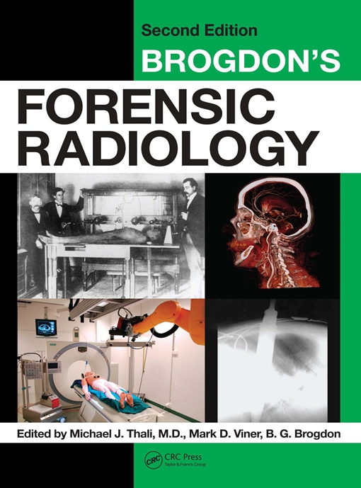 Brogdon's Forensic Radiology, Second Edition