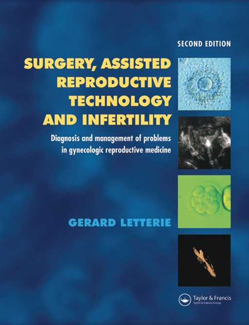 Surgery, Assisted Reproductive Technology and Infertility