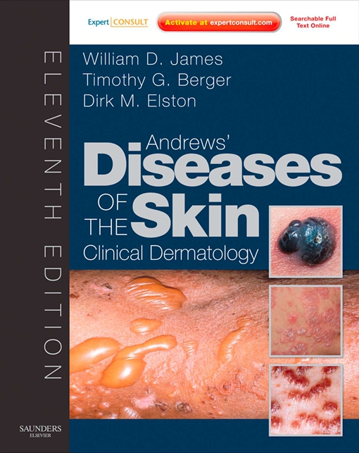 Andrew's Diseases of the Skin