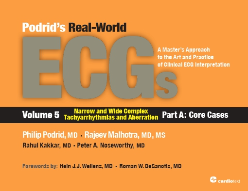 Podrid's Real-World ECGs: Volume 5, Narrow and Wide Complex Tachyarrhythmias and Aberration-Part A: Core Cases