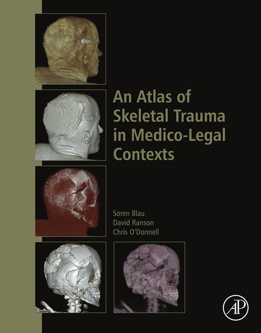 An Atlas of Skeletal Trauma in Medico-Legal Contexts