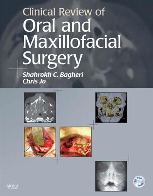 Clinical Review of Oral and Maxillofacial Surgery