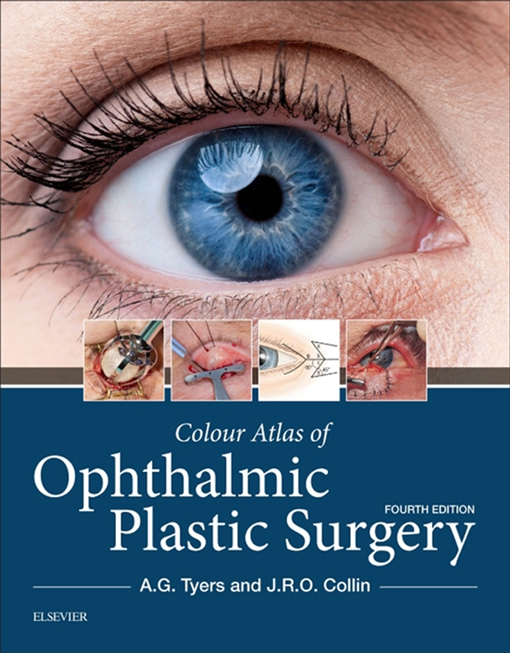 Colour Atlas of Ophthalmic Plastic Surgery