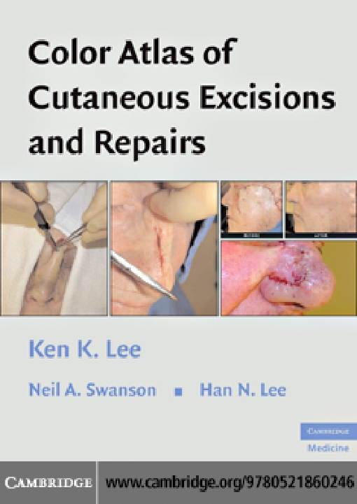 Color Atlas of Cutaneous Excisions and Repairs