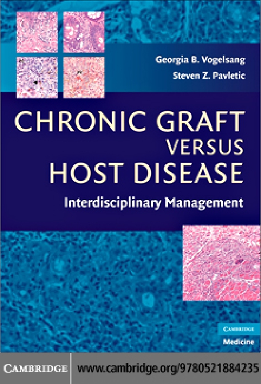 Chronic Graft Versus Host Disease