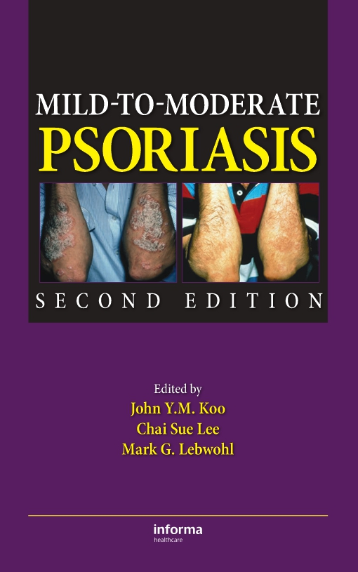 Mild-to-Moderate Psoriasis, Second Edition