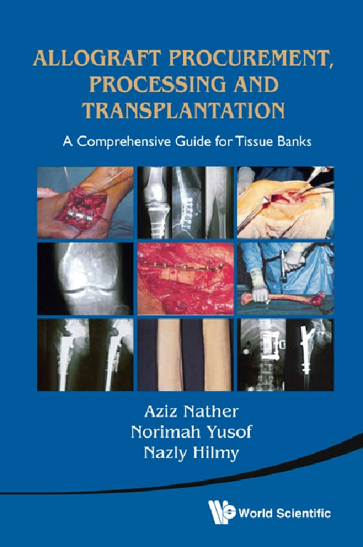Allograft Procurement, Processing and Transplantation