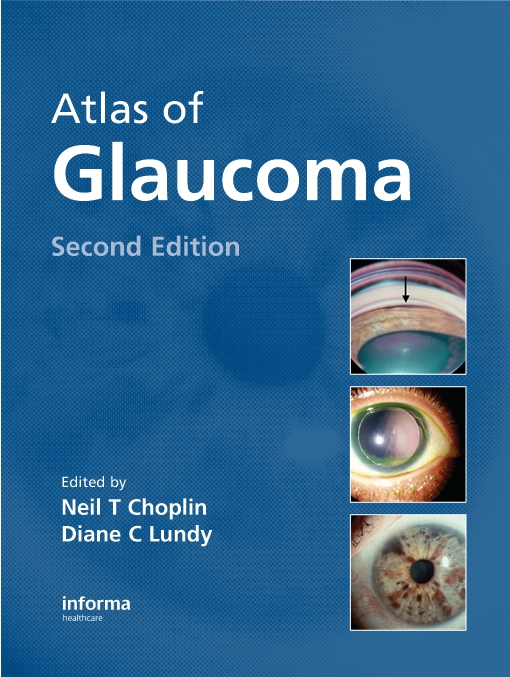 Atlas of Glaucoma, Second Edition